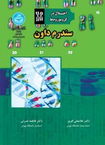 اختلال در کروموزوم ها سندروم داون نویسنده غلامرضا افروز و فاطمه نصرتی